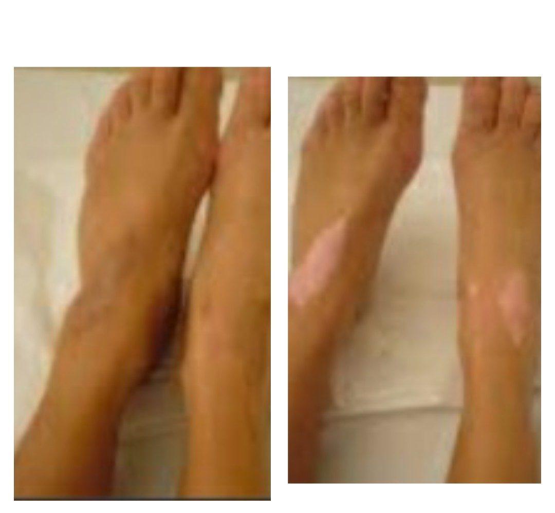 dépigmentation vitiligo